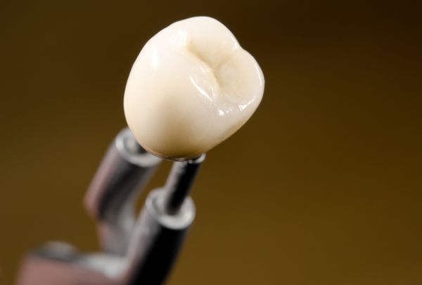 What Is The Purpose Of Dental Crowns?