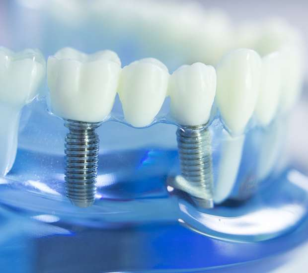 La Verne Dental Implants