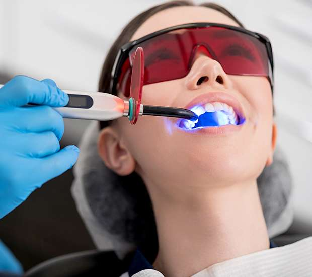 La Verne Professional Teeth Whitening